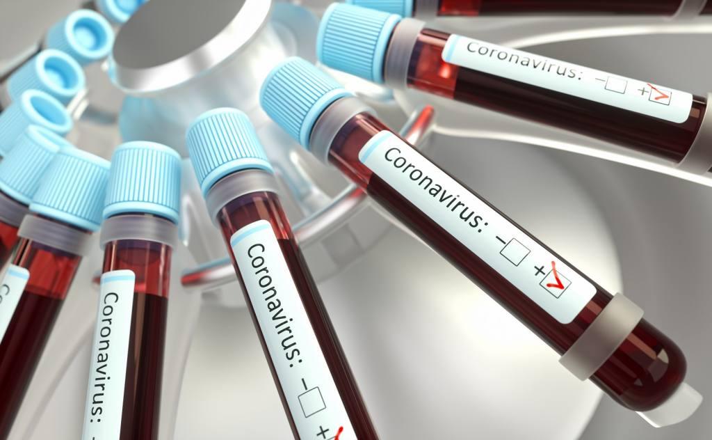 Los tratamientos para el Covid-19 y los recursos que nos ofrece el derecho de patentes